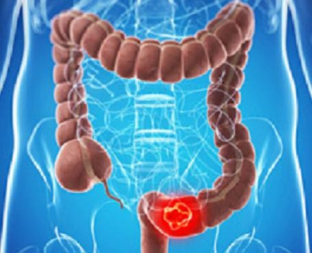 tumore del colon-retto
