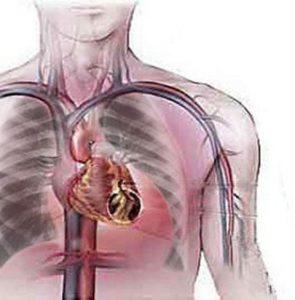 formazione di un aneurisma dell'aorta addominale
